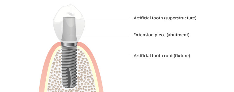 Implant components - Dental Implants Net