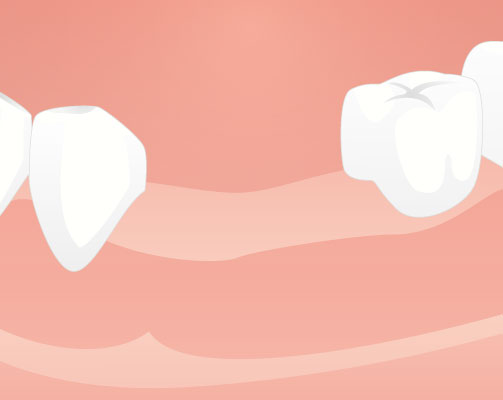 Procedures for implant treatment and a treatment period - Dental Implants Net