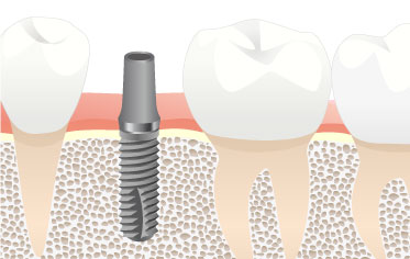 One-stage method - Dental Implants Net