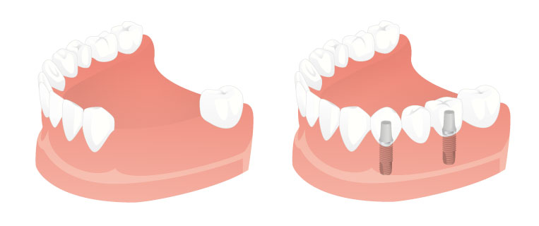 Replacing multiple missing teeth - Dental Implants Net