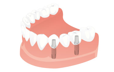 Restoring a natural-looking appearance - Dental Implants Net